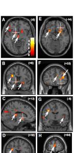 cervello-dipendenza