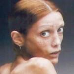 adolescenza-anoressia