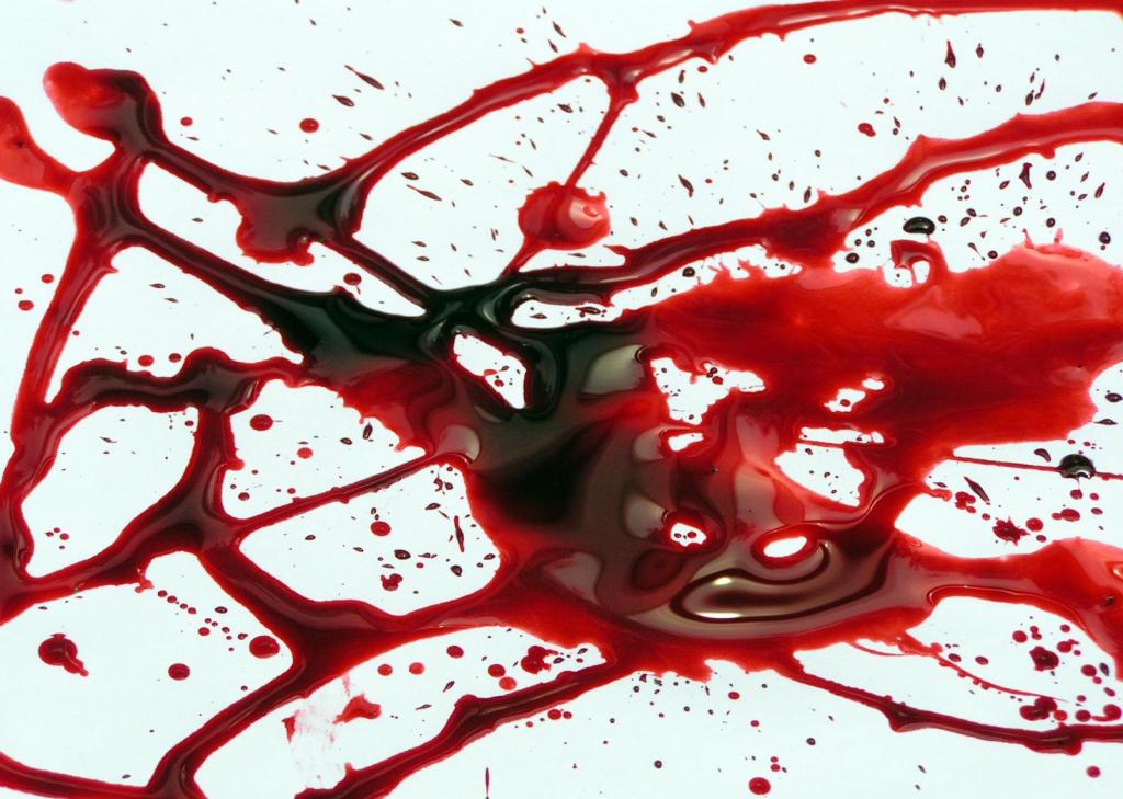 macchie-sangue