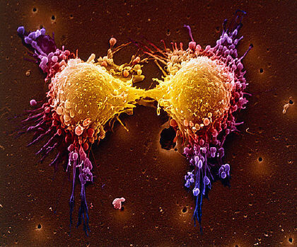 diagnosi-cancro