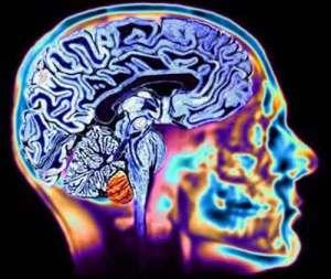 cervello-adolescente