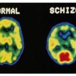 schizofrenia-definizione-caratteristiche