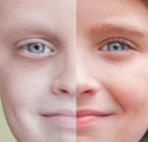 diagnosi-cancro-bambino