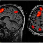attaccamento cervello