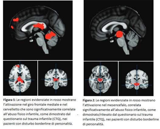 attaccamento trauma cervello
