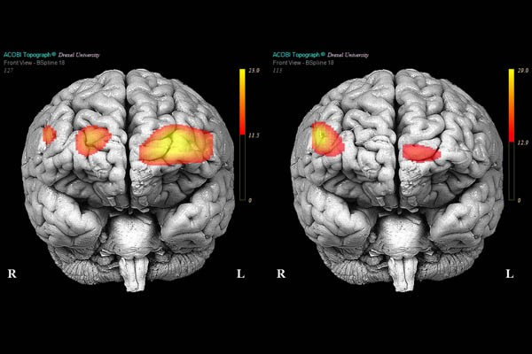 cervello di un borderline