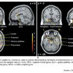 cervello empatia