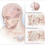 tic-deep-brain-stimulation