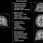 cosa succede nel cervello di uno psicopatico